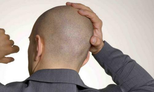 cicatrizes na cabeça